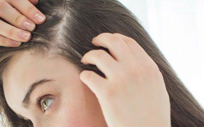 הקשר בין הורמון גברי לדלדול ואיבוד שיער בקרב נשים